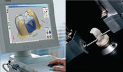 Implantologia Orale Computerizzata